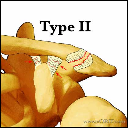 Acromioclavicular Joint Separation Classification | eORIF of Type 2 ac separation icd 10