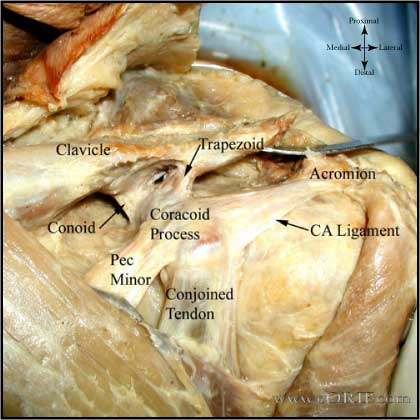 Distal clavicle ligaments