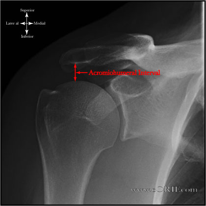 Acromiohumeral Interval