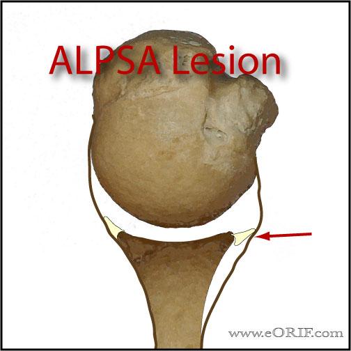 ALPSA lesion picture