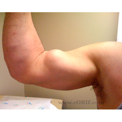 proximal biceps tendon rupture picture