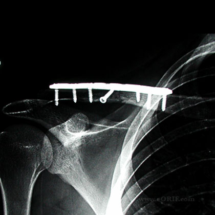 clavicle fracture ORIF xray