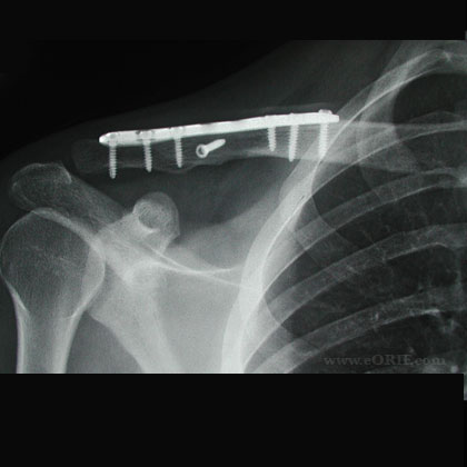 clavicle fracture plate xray