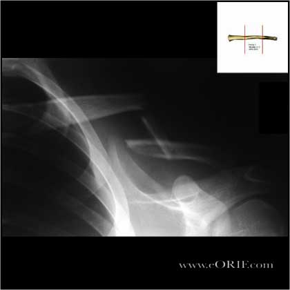 Type I Clavicle shaft fracture xray