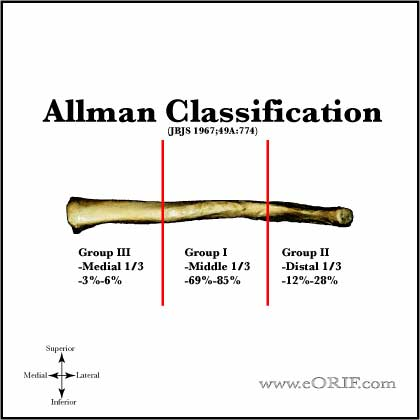 Allman Classification of clavicle shaft fracture