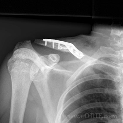 clavicle fracture surgery xray