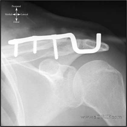 Distal clavicle fracture ORIF xray