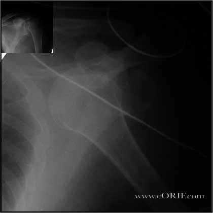 Anterior Inferior Shoulder Dislocation