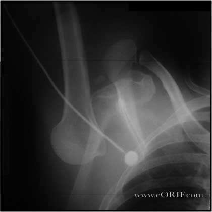 Inferior Dislocation picture