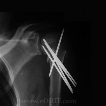 Proximal Humerus Fracture crpp xray