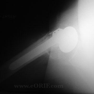 Proximal Humerus Fracture hemiarthroplasty