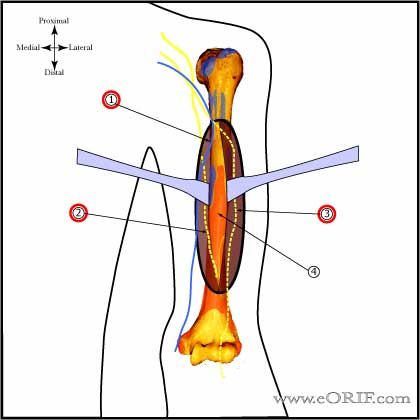 humeral-shaft-approaches
