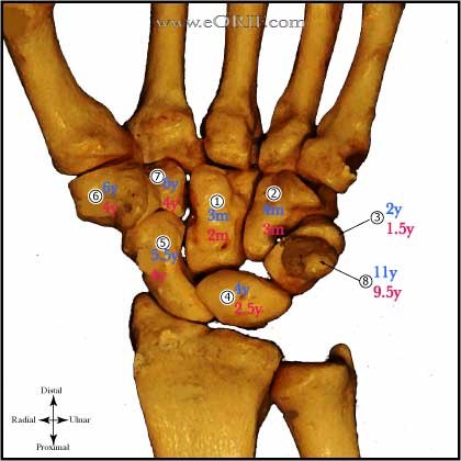 Carpal Ossification Sequence