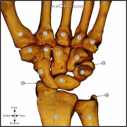 carpal bones picture
