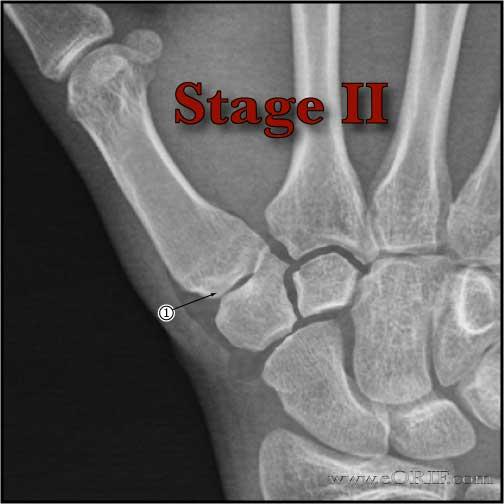 Eaton Littler Stage II thumb arthritis