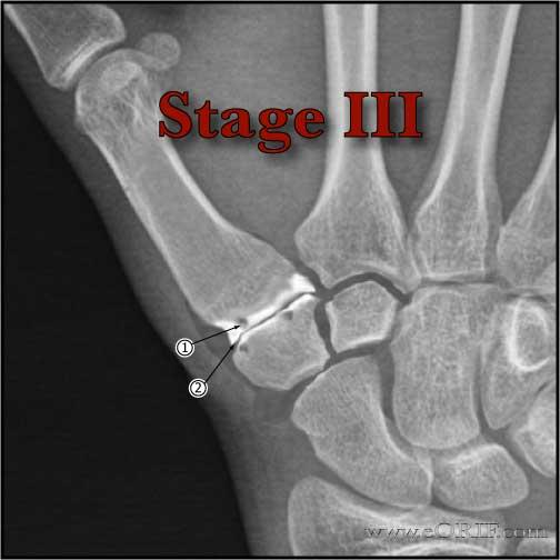 Eaton Littler Stage III thumb arthritis