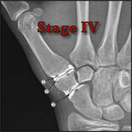 Eaton Littler Stage IV thumb arthritis