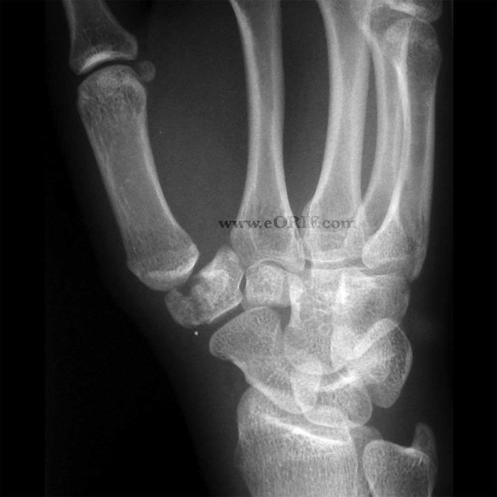 Wrist Fracture Natural Treatment