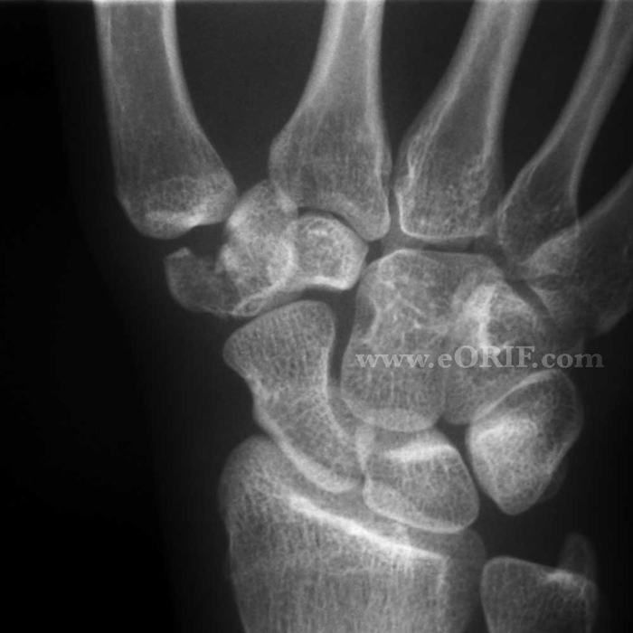 Trapezium Fracture S62.173A 814.05 | eORIF of Right leg fracture unspecified icd 9