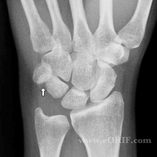 Wrist Fracture Natural Treatment