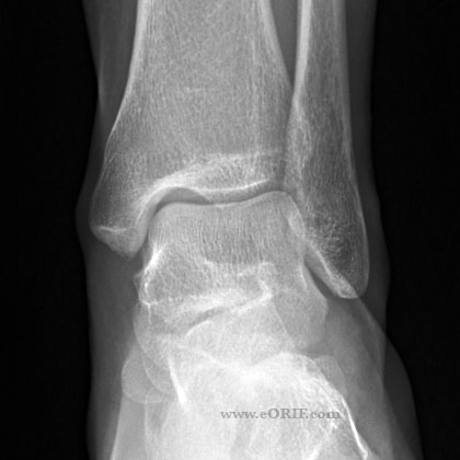 Ankle A/P view xray