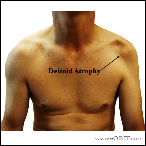 deltoid atrophy picture