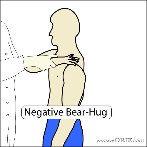 Bear Hug Test picture