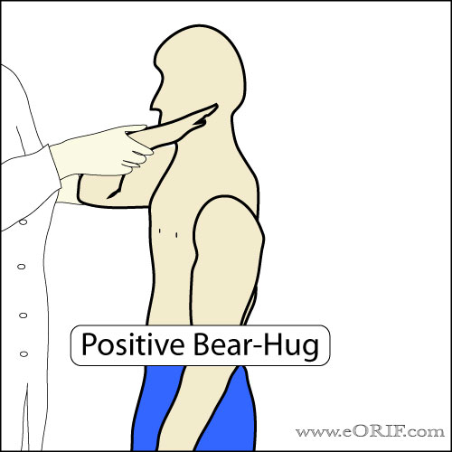 Bear Hug Test