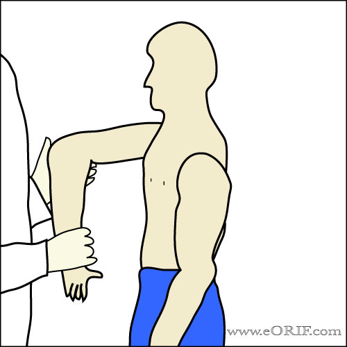 Coracoid Impingement Sign