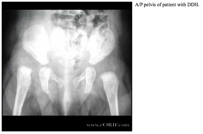 Developmental Dysplasia of the Hip | eORIFX Ray Femur Cpt
