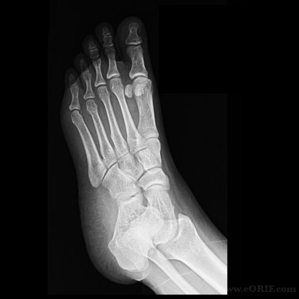Foot oblique view xray