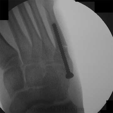Jones fracture screw fixation xray image