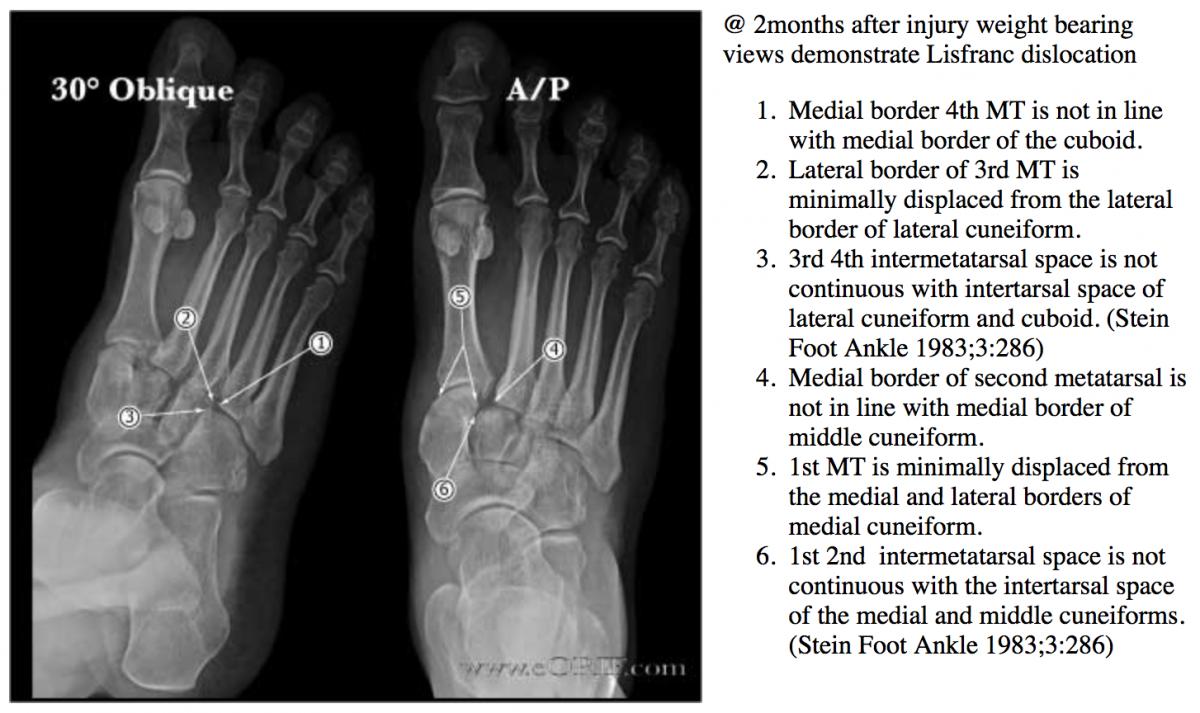 Lisfranc fracture-dislocation S93.326A 838.03   eORIF