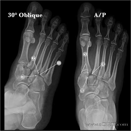 lisfranc injury xray