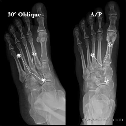 Lisfranc joint normal xrays