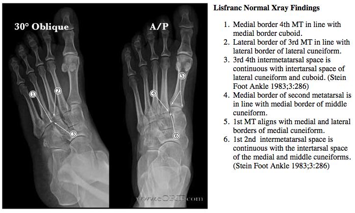 Lisfranc Fracture Dislocation S93326a 83803 Eorif