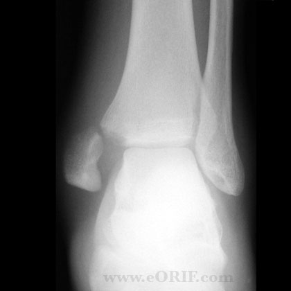 Ankle Fracture S82.843A 824.4   eORIF