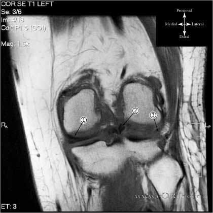 Bucket handle meniscal tear MRI