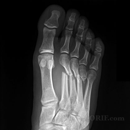 Metatarsal fracture A/P view xray