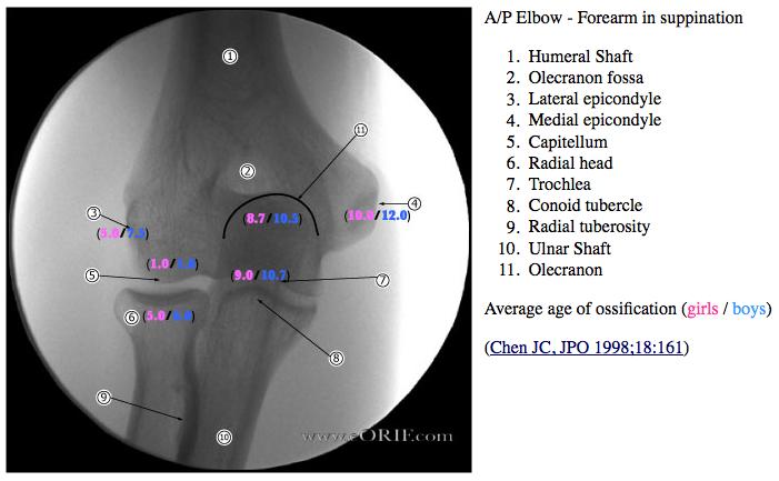 Pediatric Elbow Dislocation S53006a 83200 Eorif