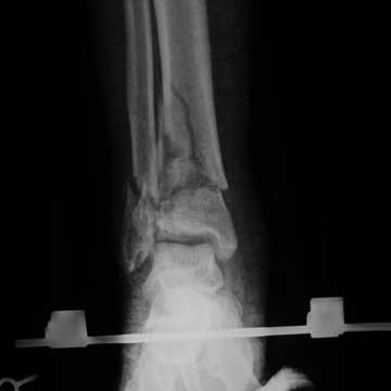 Pilon fracture external fixation xray