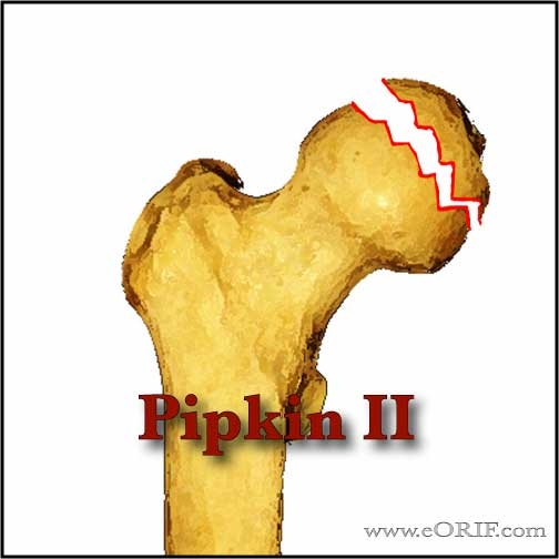 Pipkin Type II femoral head fracture image