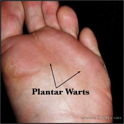 warts on hands icd 10