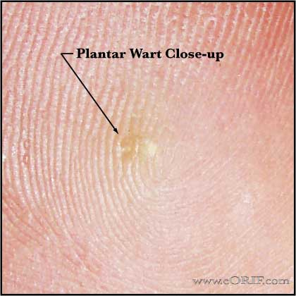 Warts on hands icd 10, Warts on both hands icd 10 - Warts on hands icd 10