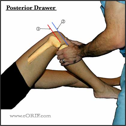 knee posterior drawer test