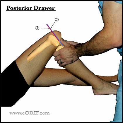 positive knee posterior drawer