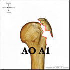 AO A1 proximal humerus fracture
