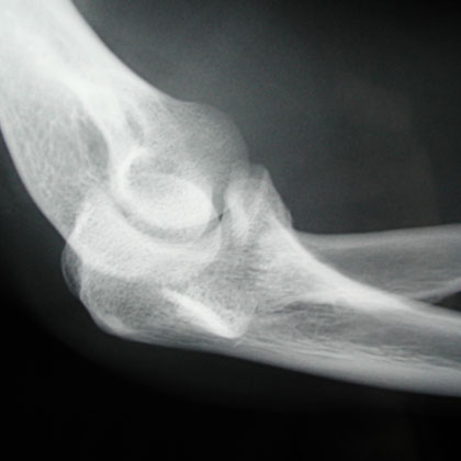 Radial Head fracture xray