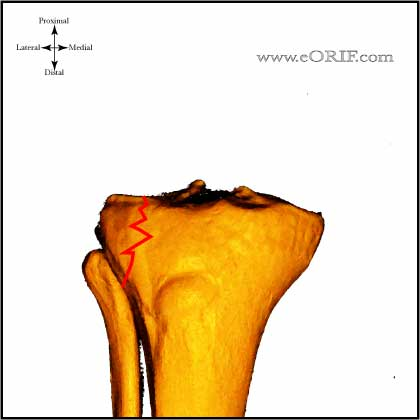 Type I Tibial Plateau Fracture image