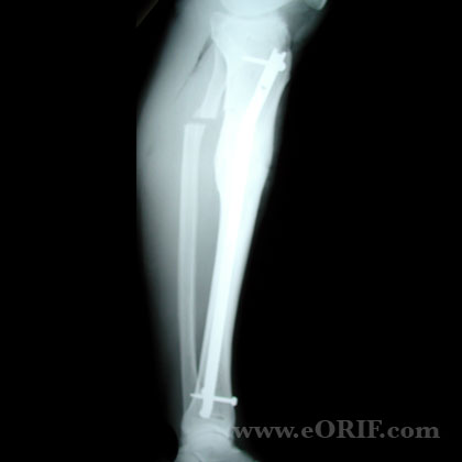 Tibial Shaft Fracture Malunion S82.90XP 733.81 | eORIF
